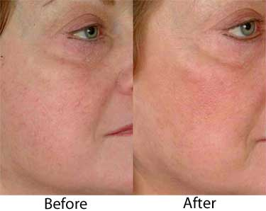 Vein Reduction on the Face